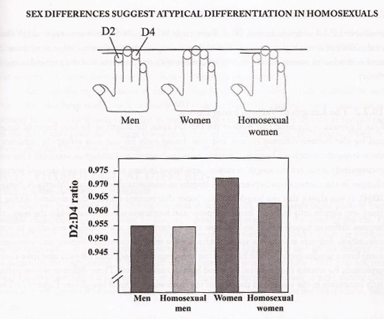Homosexuality finger length ratio